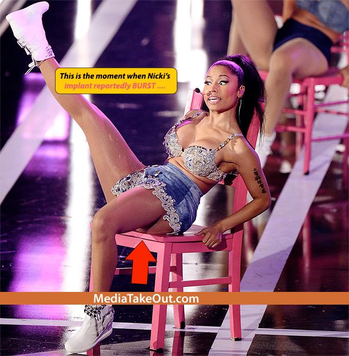 Nicki Minaj S Butt Breaks During Performance Pics